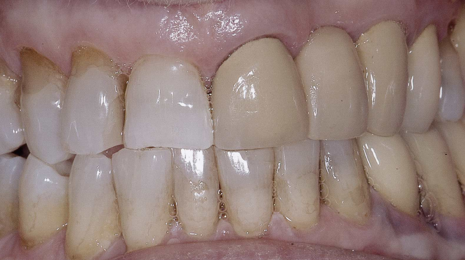 Before restorative dentistry