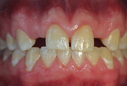 Because the tooth space in this situation was less than 5 mm , a special narrow neck implant was used.
