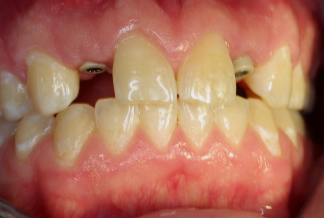 A one-stage implant was utilized, the healing caps were concealed by the pre-existing denture.
