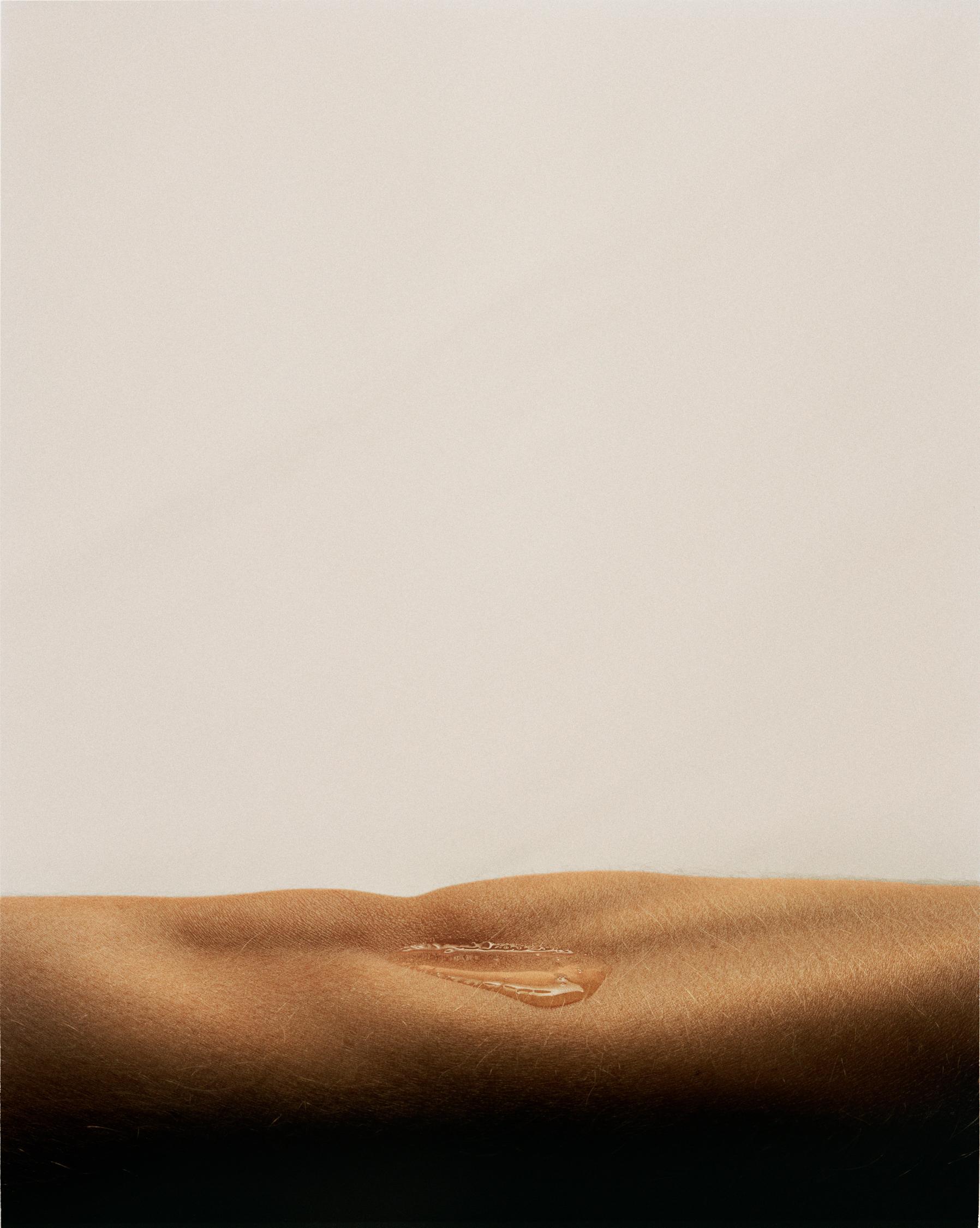 john-midgley-skin-18.jpg