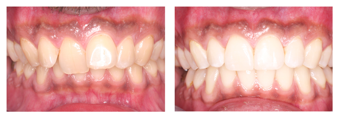 Inman Aligner Before and After