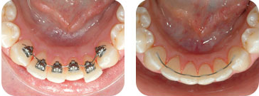 stb lingual braces pics