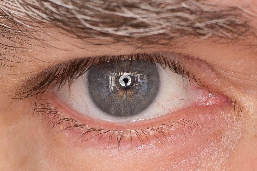 eye-crop.jpg