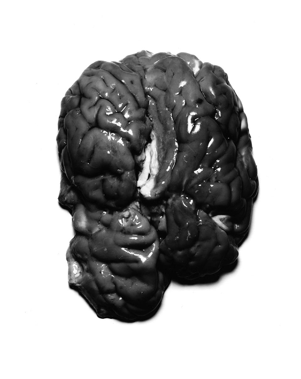 brainbw.jpg