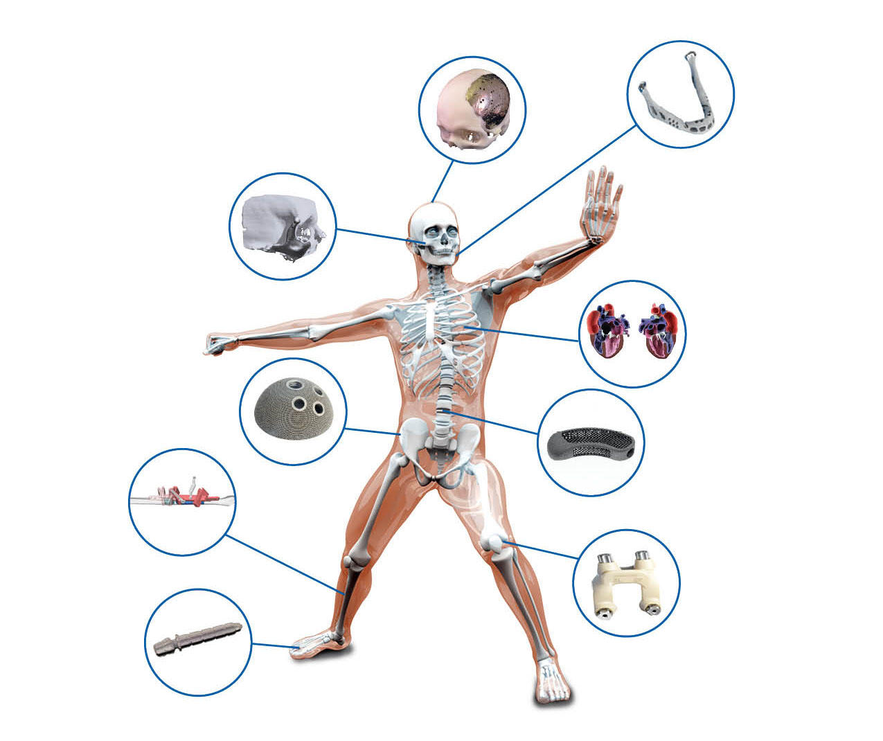 3D Systems is focusing heavily on the medical implant market