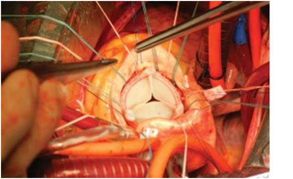 3D Printed Aortic Valve Protectors and Paravalvular Probes During an Aortic Valve Replacement
