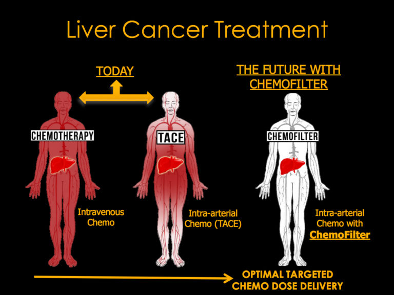Liver cancer treatment has advanced from intravenous delivery of chemotherapy drugs, which affects not only the tumor and liver but also organs throughout the body (red, left), to intra-arterial chemo (center), which limits the spread of the drug, though up to half can still exit the liver to poison the rest of the body. The proposed absorber would sop up unused drug emerging from the liver, drastically reducing unwanted effects on other organs (right). [Image: UC Berkeley]