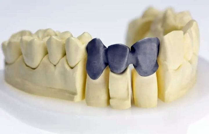 A bridge framework 3D-printed in CE-certified cobalt chrome with Renishaw's LaserPFM dentistry 3D printing. (Image courtesy of Renishaw.)