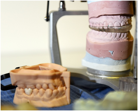 3D Printed Dental Guard Created with a Formlabs Form 2 Printer [Source:  U.S. Air Force  / U.S. Air Force photo by Louis Briscese]