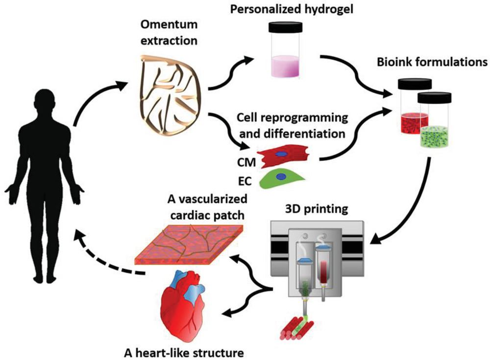 Concept schematic. An omentum tissue is extracted from the patient and while the cells are separated from the matrix, the latter is processed into a personalized thermoresponsive hydrogel. The cells are reprogrammed to become pluripotent and are then differentiated to cardiomyocytes and endothelial cells, followed by encapsulation within the hydrogel to generate the bioinks used for printing. The bioinks are then printed to engineer vascularized patches and complex cellularized structures. The resulting autologous engineered tissue can be transplanted back into the patient, to repair or replace injured/diseased organs with low risk of rejection. [Image: Tel Aviv University]