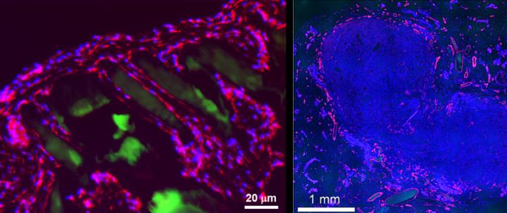 Prellis structure transplanted alone is surrounded by single cell walled capillaries within two weeks of transplantation into immunocompetent mouse (left). Human tumor cells transplanted in Prellis structures grow rapidly, are highly vascularized and demonstrate minimal hypoxia (right) (red = CD31, blue = DAPI, green = printed structure) [Image: Prellis Biologics]