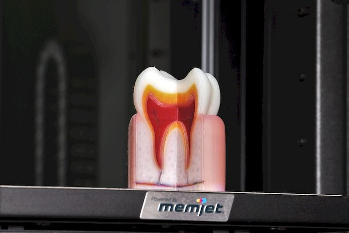 Full color 3D printed tooth model [Source: OWE]