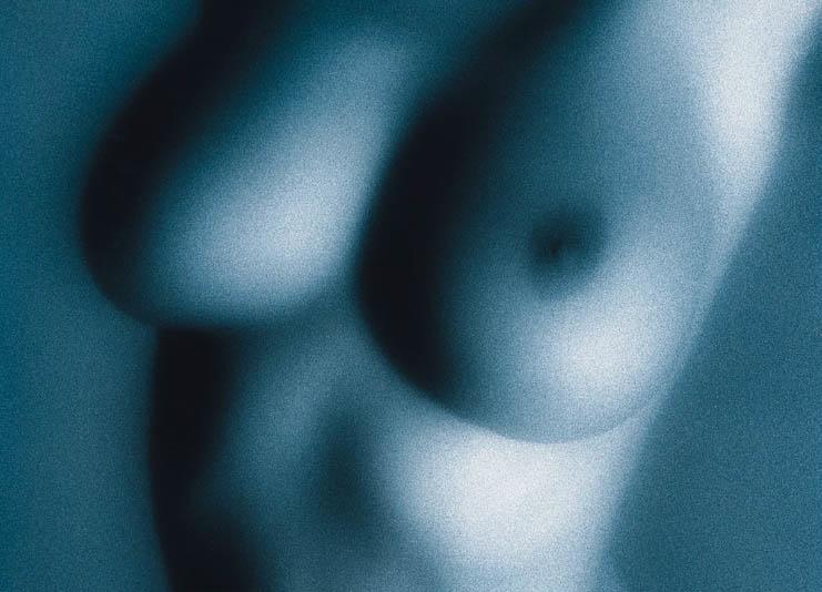 La réduction mammaire, une intervention qui décomplexe la jeune femme