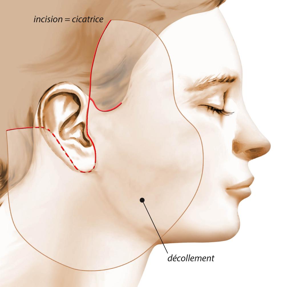 lifting-cervico-facial.png