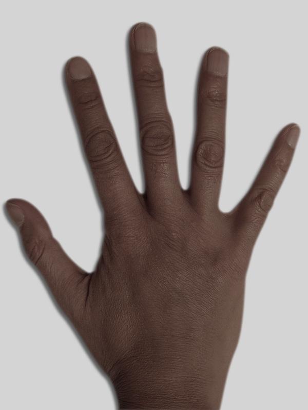 après, un lipofilling des mains