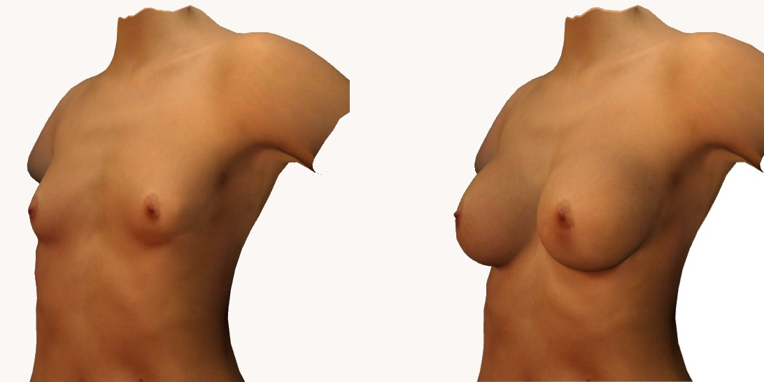Simulation 3D enavant-projet d'une augmentation mammaire