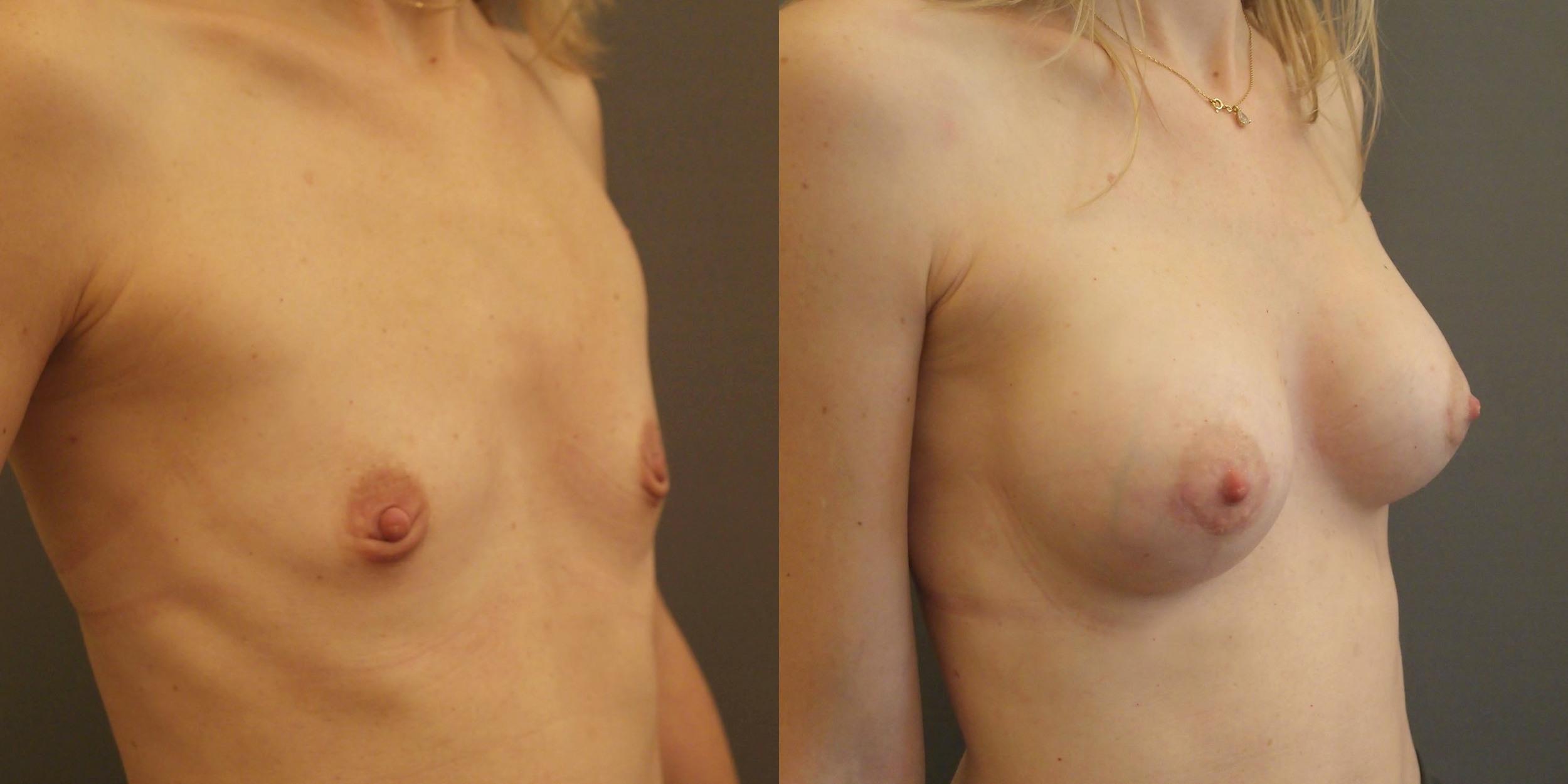 Avant-après, le résultat naturel d'une augmentation mammaire réussie © Dr Eric Plot