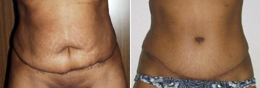 Avant-après, correction d'une abdominoplastie ratée © Dr Eric Plot