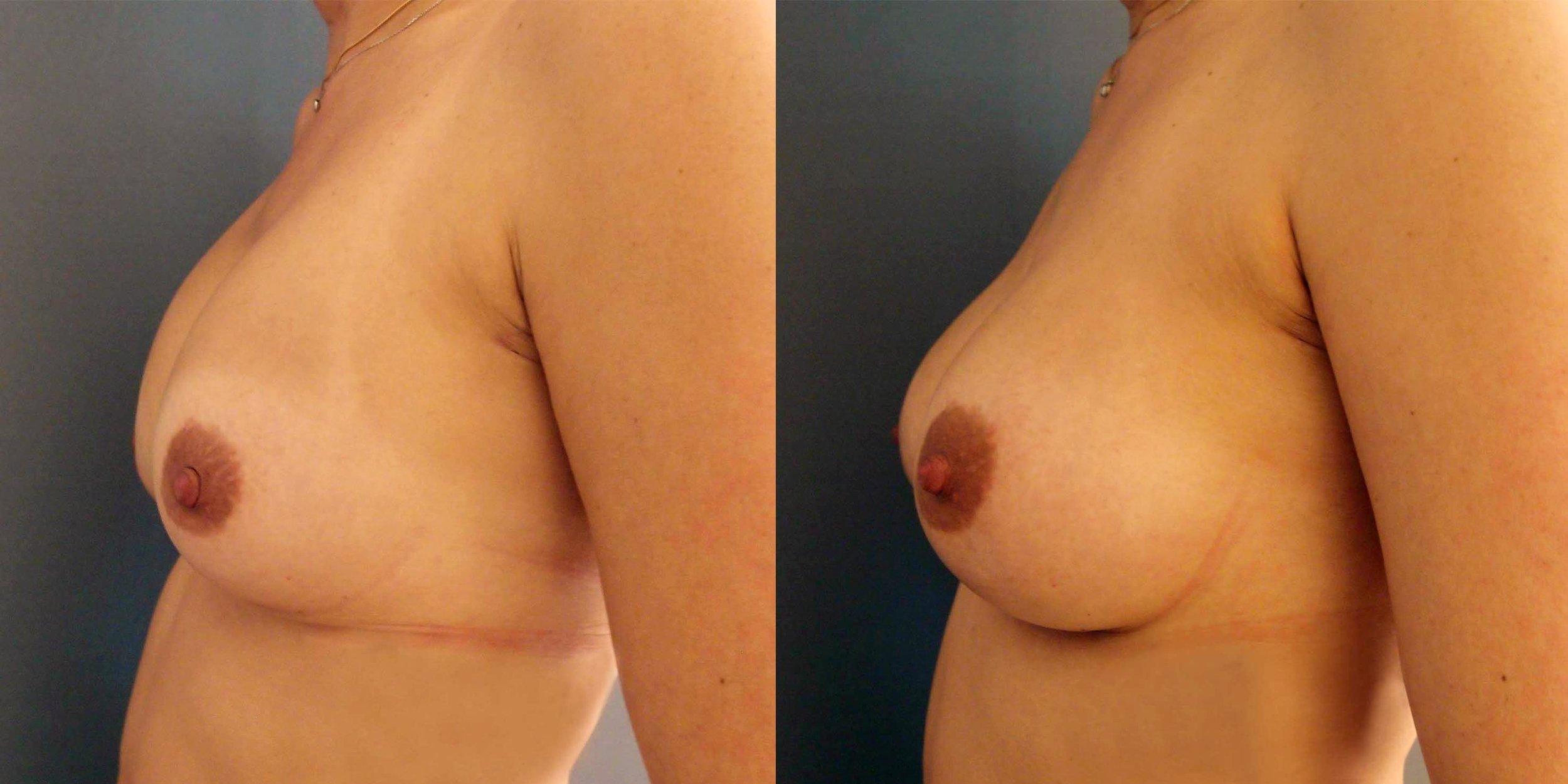 Avant-après, un remplacement d'implants mammaires réussi © Dr Eric Plot