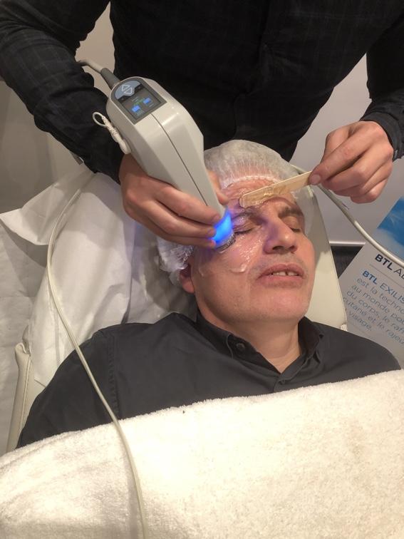 La radiofréquence monopolaire, un bon premier traitement des rides du tour des yeux