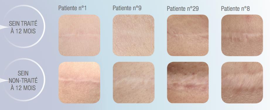Exemples de résultats comparés par patiente avec et sans traitement laser per-opératoire de la cicatrice (source UrgoTouch, étude réalisée sur 40 patientes dans le service de Chirurgie plastique et réparatrice de l'Hôpital de la Conception à Marseille dirigé par le Professeur Casanova)