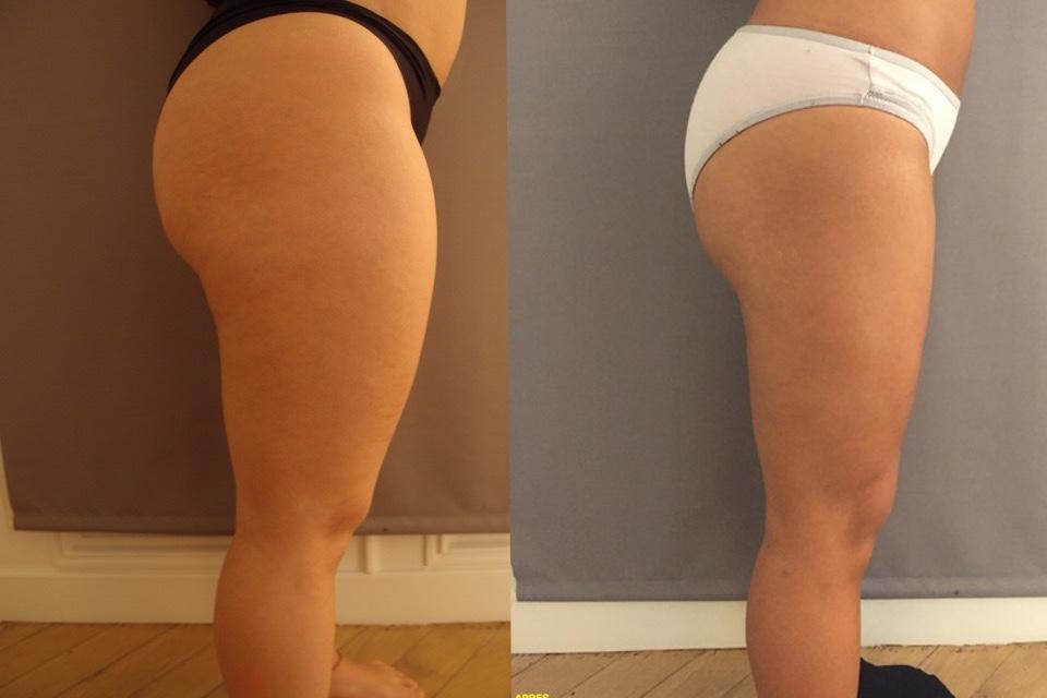 Quand a liposuccion aide à maigrir…