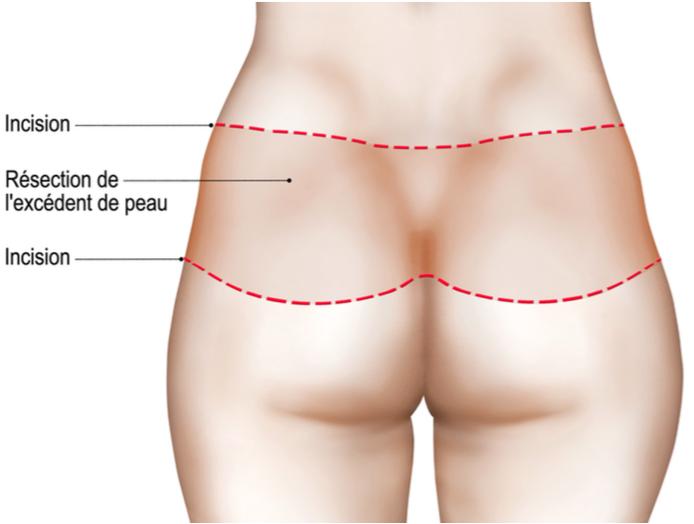 Bodylift, la phase dorsale