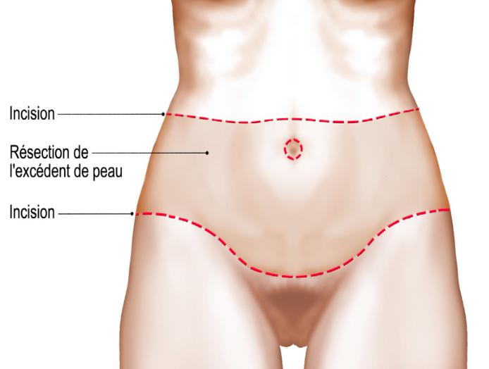 Bodylift, la phase ventrale (plastie abdominale)