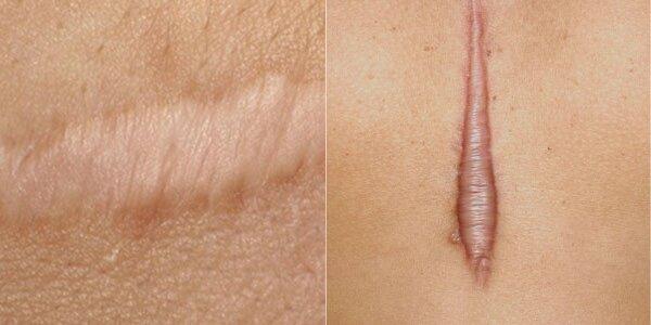 cicatrice hypertrophique linéaire cicatrice chéloïde