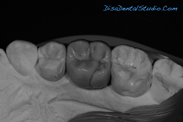 Wax Work For Emax Screw Retained Implant