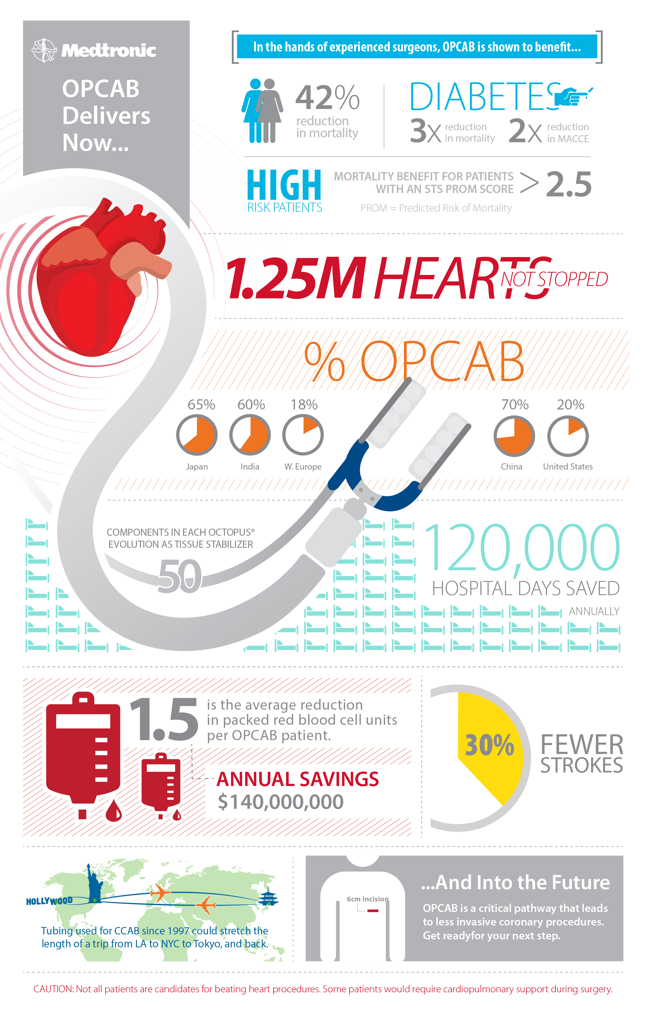 Medtronic Infographic Poster