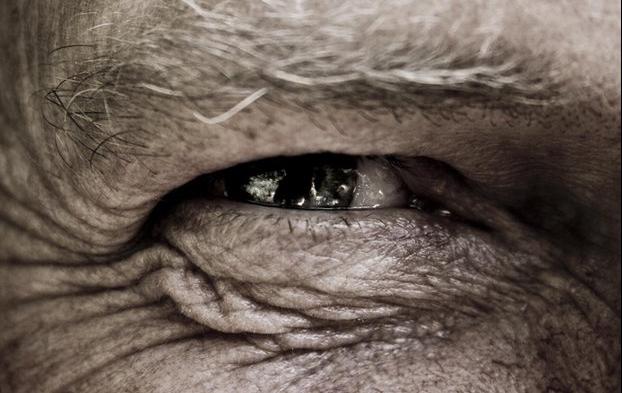 healed_eye.jpg