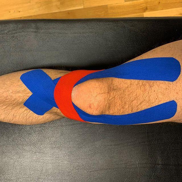 """Kinesiotape vid knäsmärta - Ibland kan det vara enkelt. En patient med knäartros (nedbrutet ledbrosk) var på återbesök för rehabträning på förmiddagen. Innan han kom till mig åt han smärtstillande varje dag pga smärta  och stelhet i vardagen. - Redan första besöket tejpade vi knät med kinesiotape. Och idag på träningen: """"Jag har inte haft ont på hela veckan, förrän jag tog av tejpen igår!"""". - Om du har generell eller specifik knäsmärta, testa att tejpa med kinesiotape. Du behöver inte ens veta exakt hur och varför det funkar - känns det bättre är det bättre! - Tejpen tar inte bort problemet i sig, men smärtan minskar i princip alltid (direkt), och det gör det möjligt att träna mer effektivt utan smärta=snabbare läkning. Och att slippa äta värktabletter. - Rehaben gör grovjobbet, men varför inte smärtlindra under tiden? Har du knäbesvär, kom in så visar vi dig hur du kan tejpa ditt eget knä! - #imc_malmo_se #johanklingstam #kinesiotape #knäartros #rehab #idrottsmedicin #knäsmärta #skarufortsättahaonteller"""