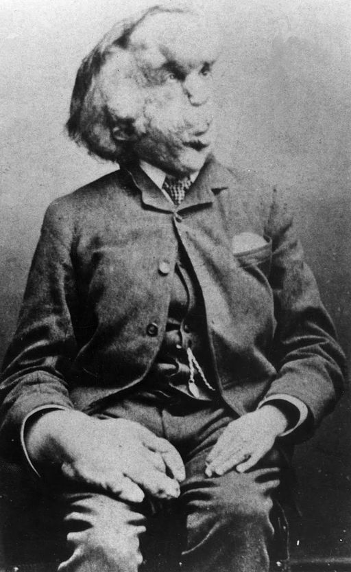 Joseph Merrick, the 'Elephant Man'.