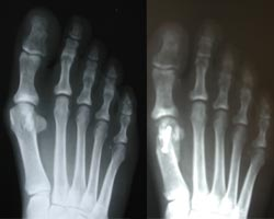 rothstein_manchester_newhampshire_foot-conditions.jpg