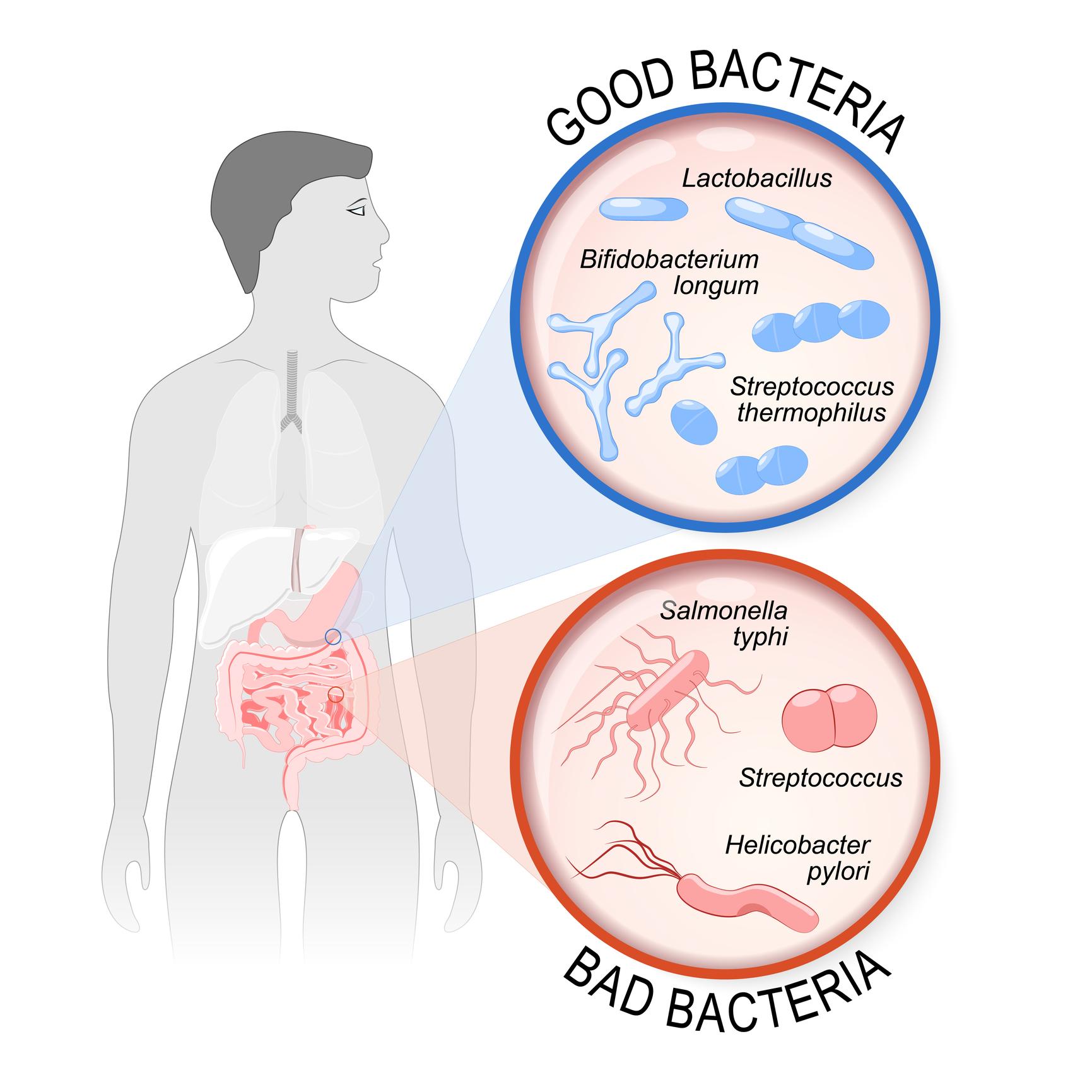 how to build a healthy gut good vs bad bacteria photo.jpg