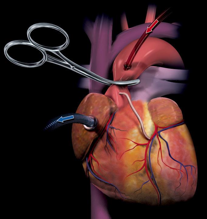 001 Heart.jpg