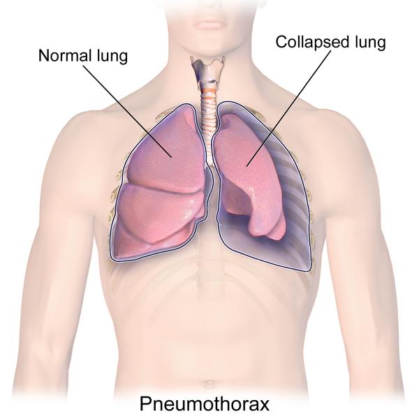 Pneumothorax.