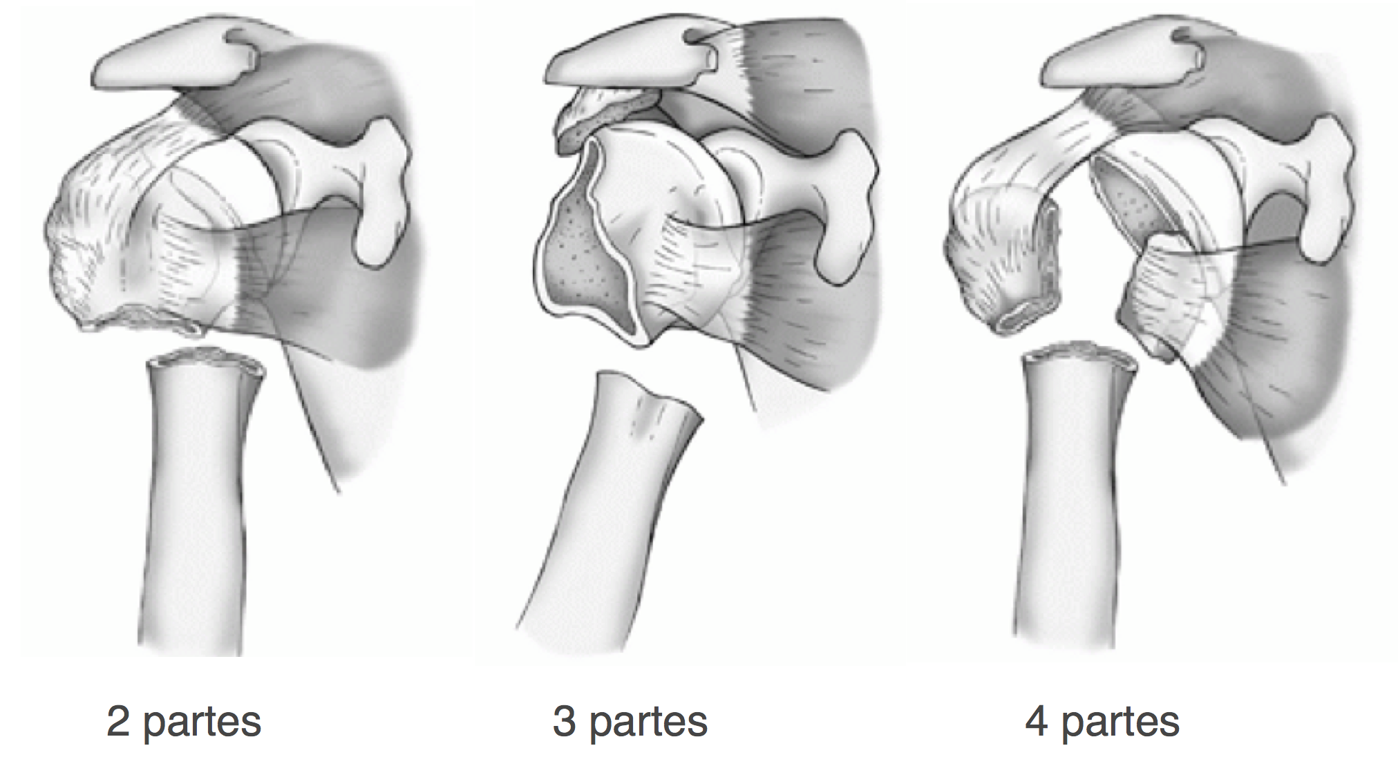 Diferentes partes da fratura