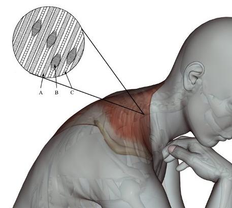 Pontos gatilho no músculo trapézio