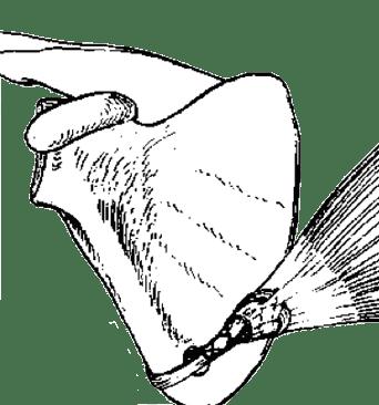 Transferência muscular para lesão do nervo torácico longo (cirurgia de melvin-post)