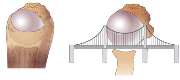Função do manguito rotador - semelhante à uma ponte pensil