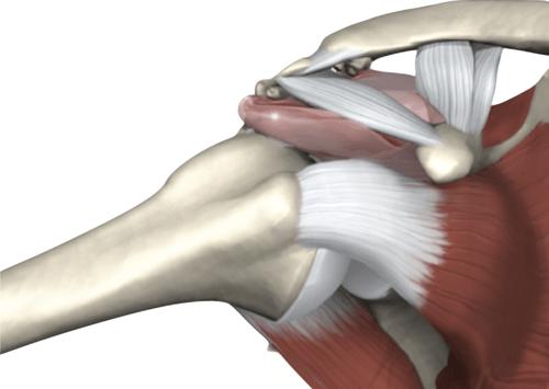 Síndrome do impacto do ombro