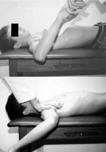 Alteração inicial do ombro do arremessador: limitação da rotação interna.