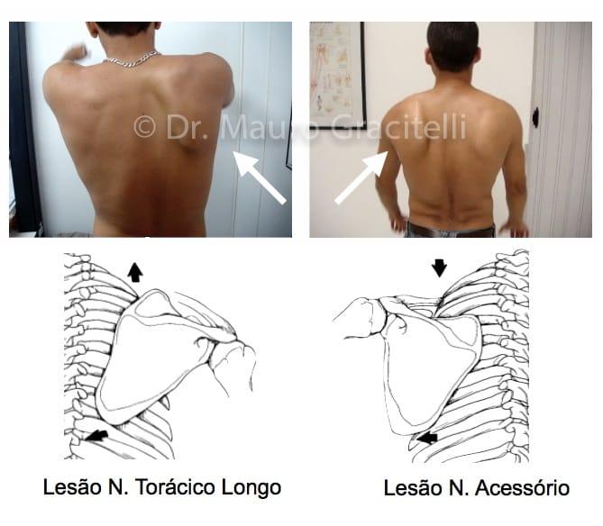Tipos de escápula alada por lesão neurológica