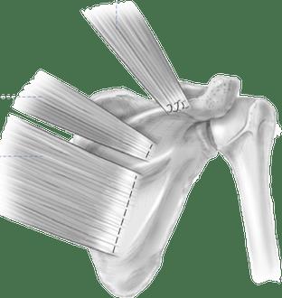 Transferência muscular para lesão do nervo espinal acessório cirurgia de eden-lange)