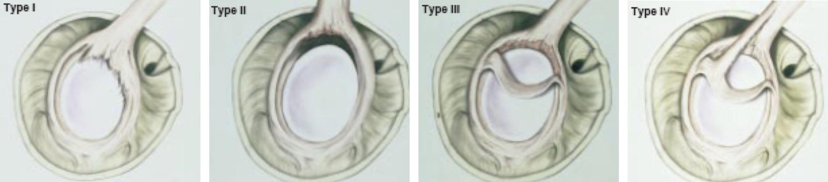 Tipos de lesão do lábio superior (SLAP)