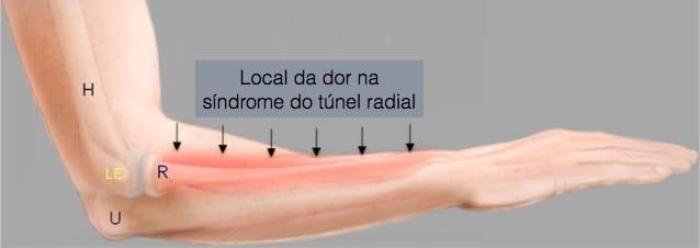Local da dor na síndrome do túnel radial
