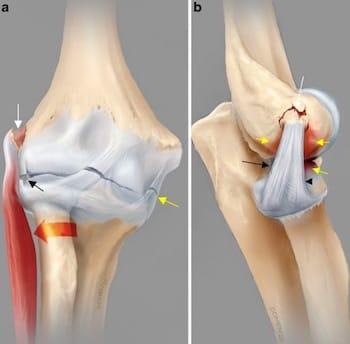 Lesão ligamentar e da cápsula articular do cotovelo: A) Frente; B) Perfil