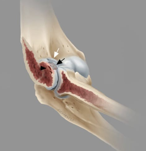 osteocondrite dissecante do cotovelo